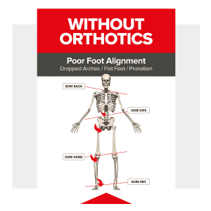 Dola Poster_without_orthotics